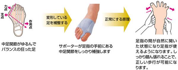 外反母趾 痛みに 変形
