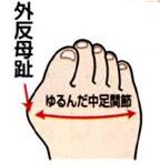 外反母趾 中足関節