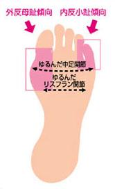 外反母趾 痛み足の変形