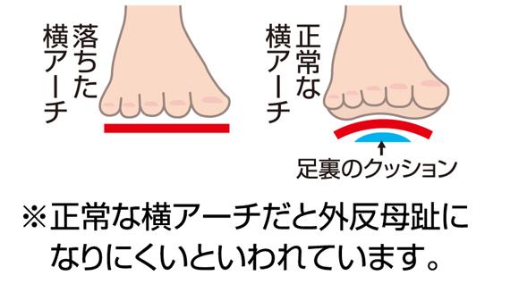 正常な横アーチだと外反母趾になりにくいといわれています。