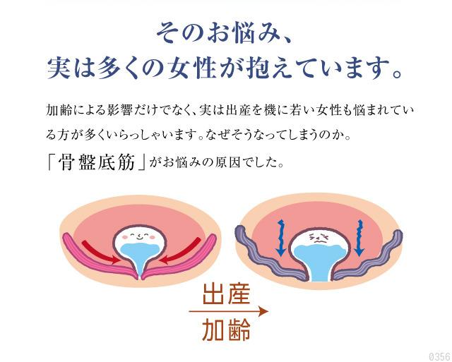 産後の尿もれのお悩み、実は多くの女性が抱えています、骨盤底筋が原因、出産、加齢