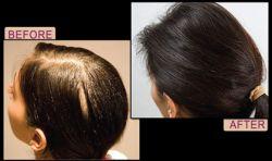 92%の人が発毛効果を実感