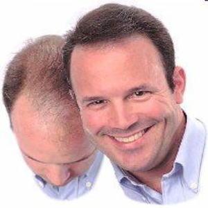 頭のフリカケ ダームマッチ 薄毛ケア用  DermMatchの画像